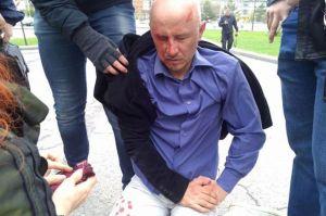 Aleksandr Jermosjkin efter överfallet i maj.